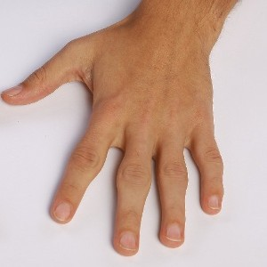 GP Webinar - Medical and Surgical Approach to the Management of Hand Arthritis